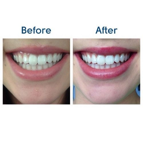 Deluxe Home Teeth Whitening Kit 36 CP - Before and After